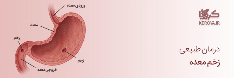 پروپولیس _ درمان زخم معده