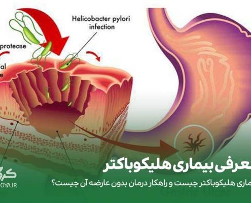 درمان بیماری هلیکوباکتر پیلوری بدون عوراض