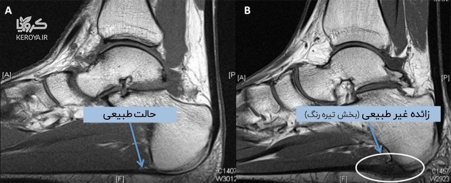 تصویر ام آر آی MRI از خارپاشنه