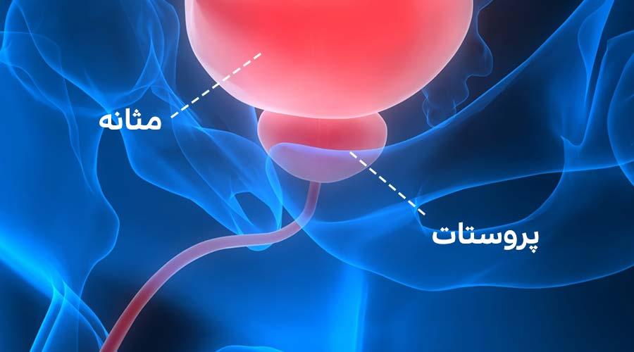 درمان گیاهی پروستات
